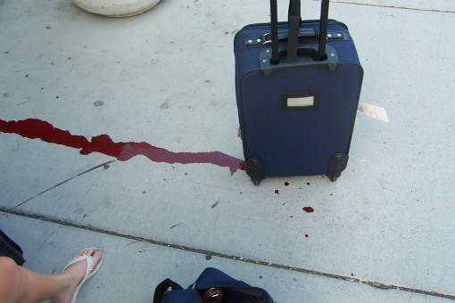 My bloody suitcase!